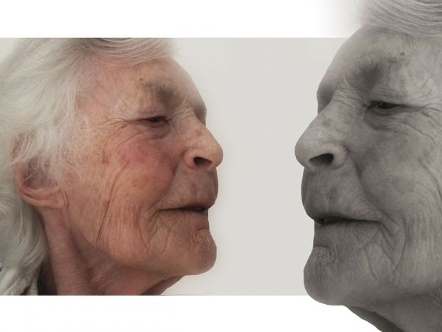 старчески петна