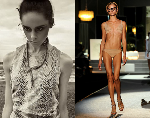 jesus and the anorexic suicidal supermodels View essay - jesus and the anorexic suicidal supermodels essay from soci 123 at the university of texas at san antonio- san antonio jesusandtheanorexicsuicidals.