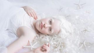 Хипнотизиращи кадри, уловили порцелановата красота на албиносите (СНИМКИ)