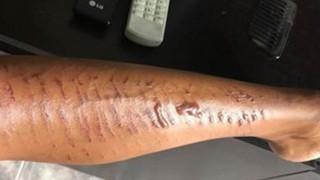 Жена пострада зловещо при лазерна епилация