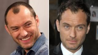 15 известни мъже, които не понесоха старостта. Присадиха си коса! (СНИМКИ)