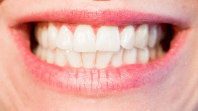Тези храни избелват зъбите ви