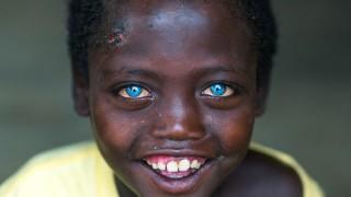 Момчето с кристалносините очи, което не се бои да бъде различно