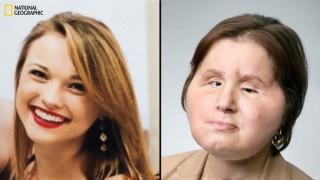 Лице назаем: Втори шанс за живот за едно обезобразено момиче