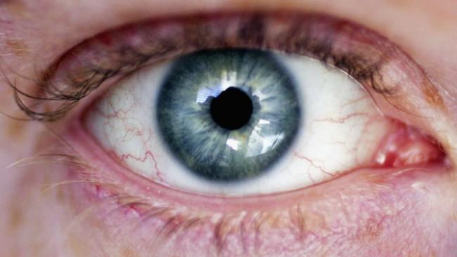 Как да се справим със сухотата в очите