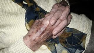 Как да заличим старческите петна от кожата