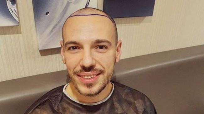 Даниел Петканов си присади коса на сметка