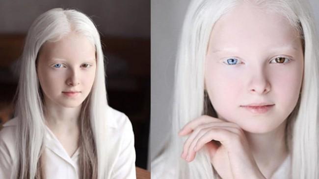 Момичето с бели коси и различен цвят на очите, което покори света с феноменалната си красота