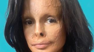 Фитнес, романтика и спа – животът на една жена с изгорено лице